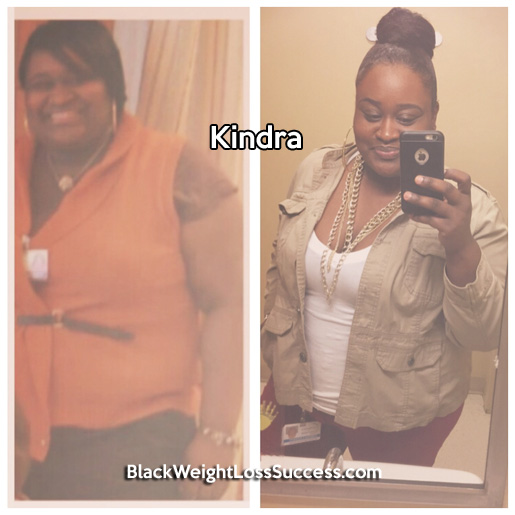 kindra before and after