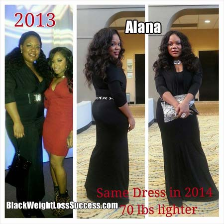 Alana weight loss story