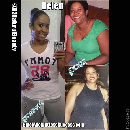 Helen weight loss story