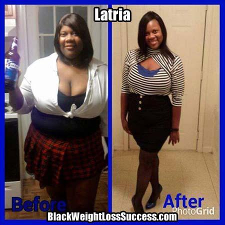 Latria weight loss surgery
