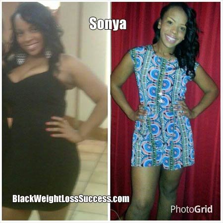 Sonya before and after