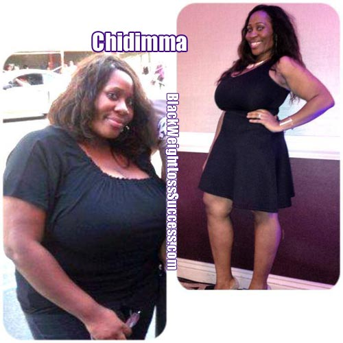 Chidimma before and after