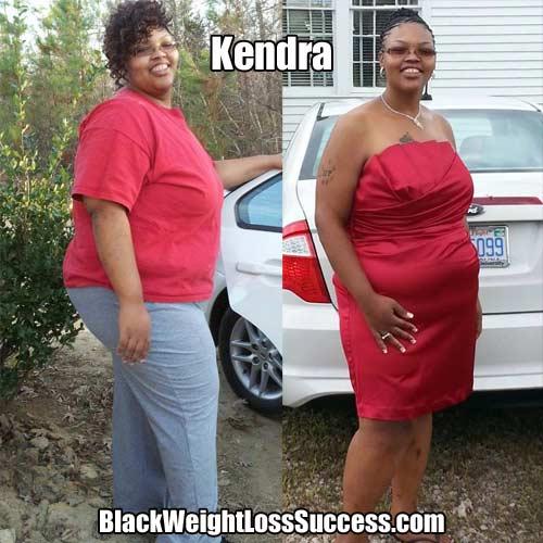 Kendra weight loss surgery