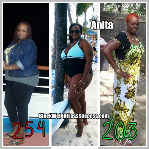 Anita weight loss surgery