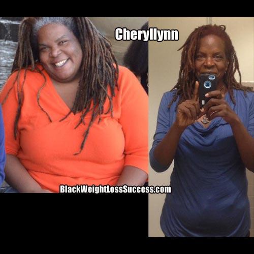 Cheryllynn weight loss journey