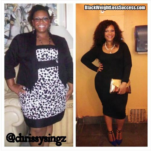 Chrissy before and after