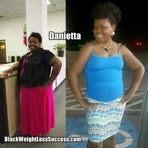 Danietta before and after