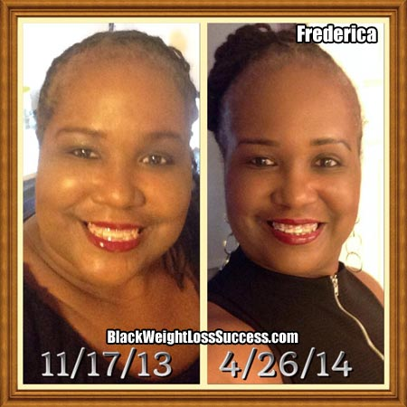 Fredericka before and after