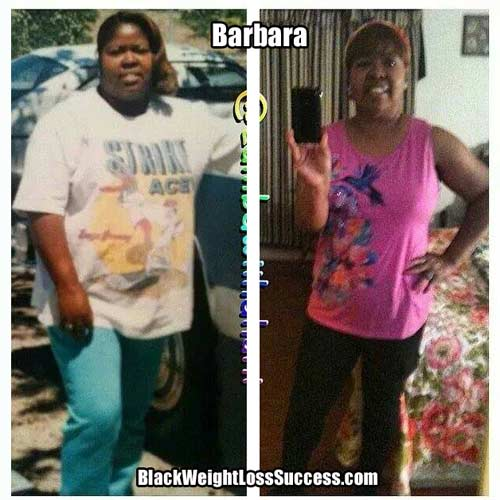 Barbara before and after