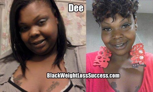 Dee weight loss surgery