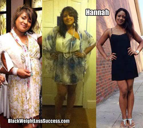 Hannah weight loss story
