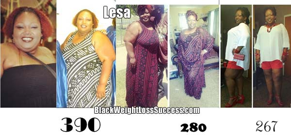 Lesa weight loss surgery