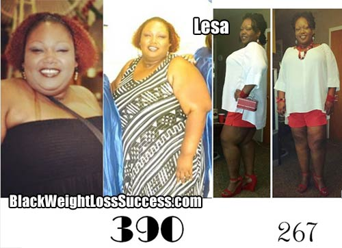 Lesa weight loss surgery