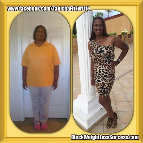 Tanisha weight loss surgery