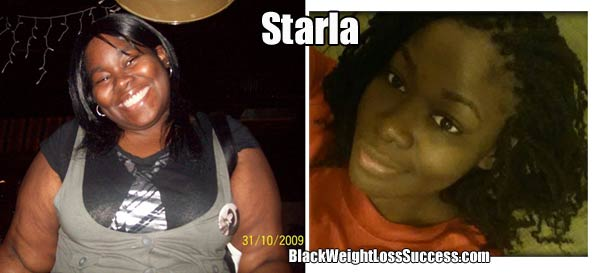 starla before and after