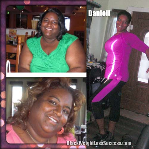 Daniell after gastric bypass