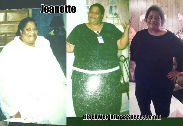 Jeanette weight loss surgery