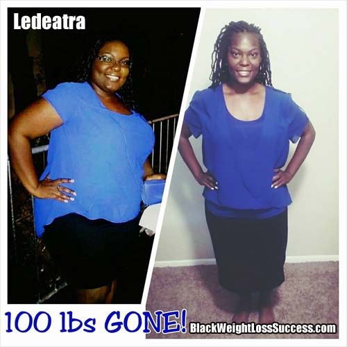 Ledeatra weight loss story