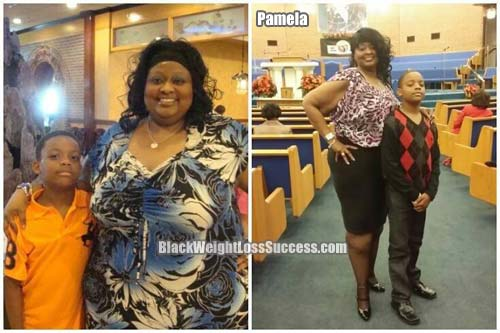 Pamela weight loss surgery story
