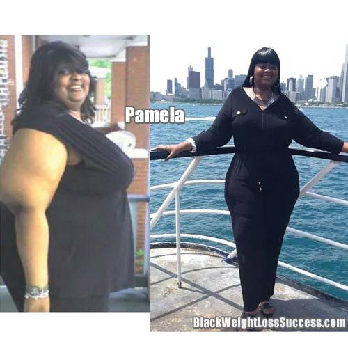 Pamela lost 160 pounds