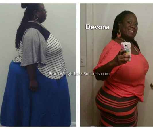 Devona before and after