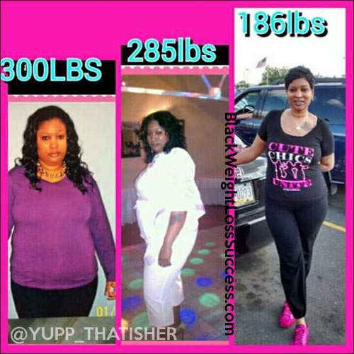 Marcella Lost 116 Pounds With Gastric Bypass Black Weight Loss Success