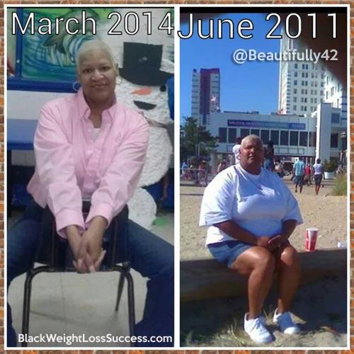 Tanya weight loss surgery
