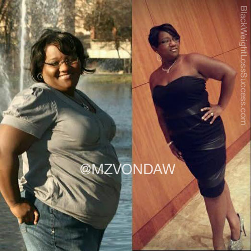 Vonda before and after