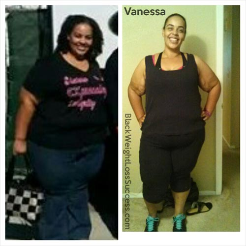 vanessa before and after