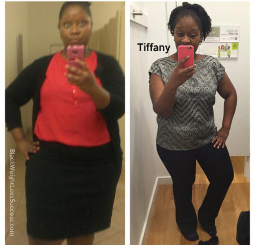 Tiff weight loss surgery