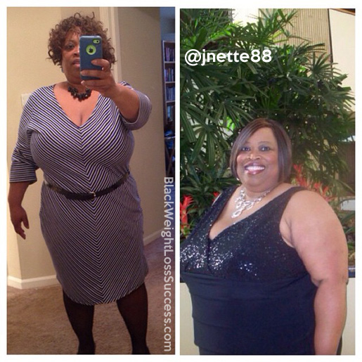Jeanette before and after