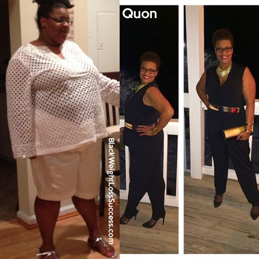 Quon weight loss story