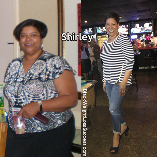 shirley before and after