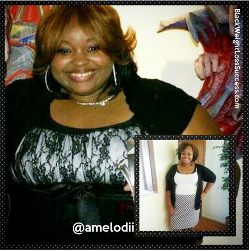 carla weight loss surgery