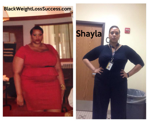 shayla before and after