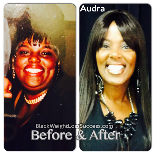 audra before and after
