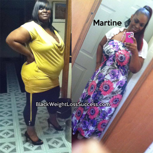 martine before and after