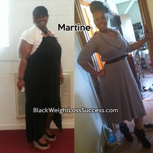 martine weight loss surgery