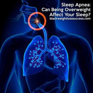sleep apnea overweight