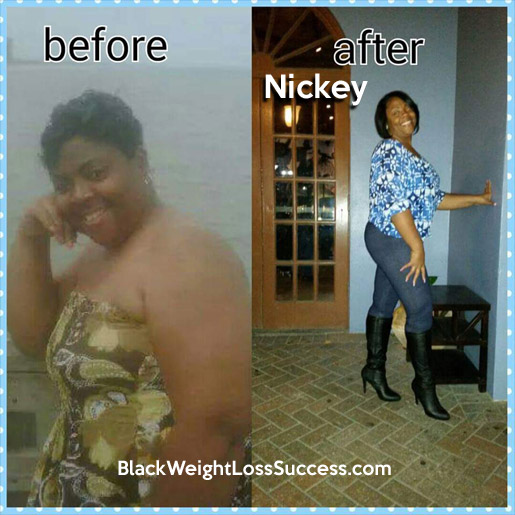 nickey before and after