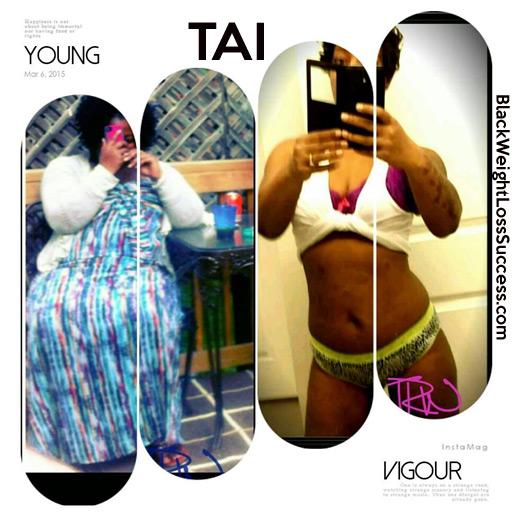 tai weight loss surgery