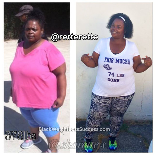 sharette before and after