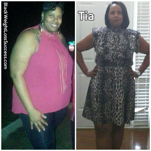 Tia before and after