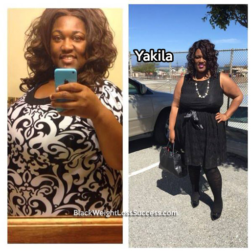 Yakila before and after