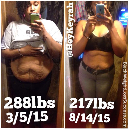 keyrah before and after