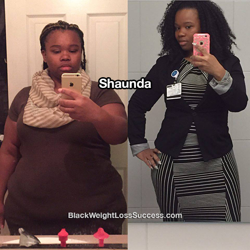 shaunda before and after