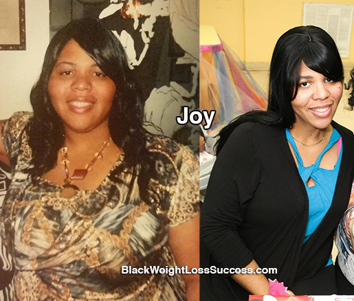 joy weight loss surgery