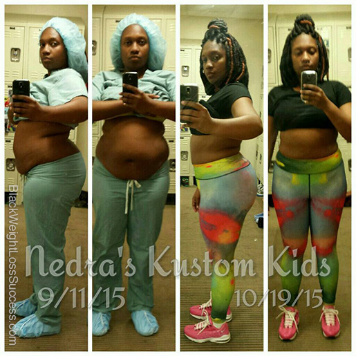 nedra before and after