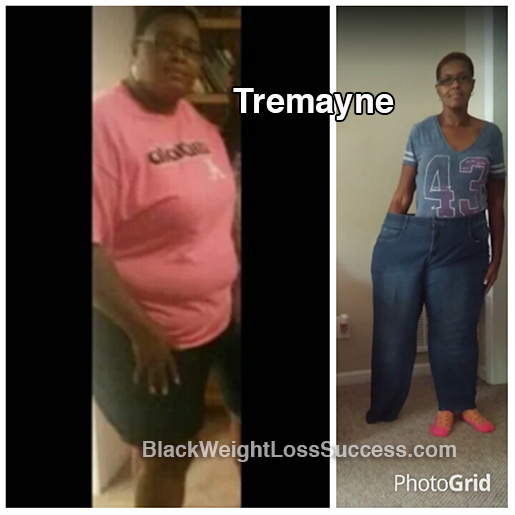 tremayne before and after