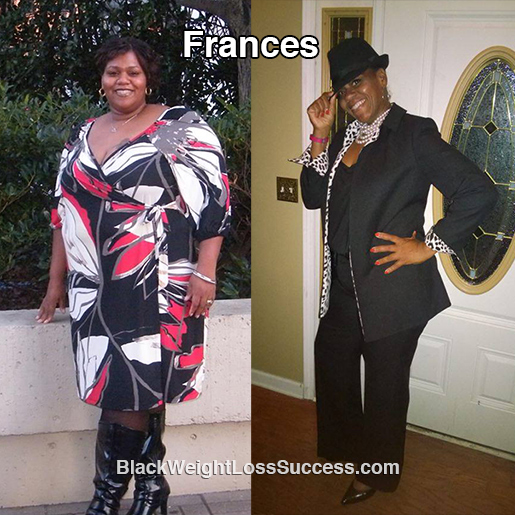 frances before and after